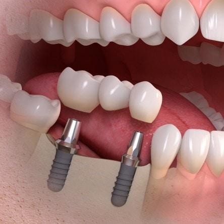 bridge dental inmplant stirling