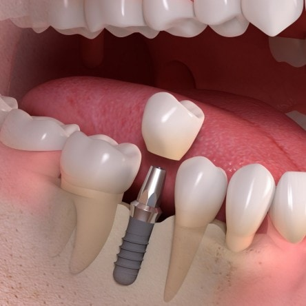 single dental implant in Stirling